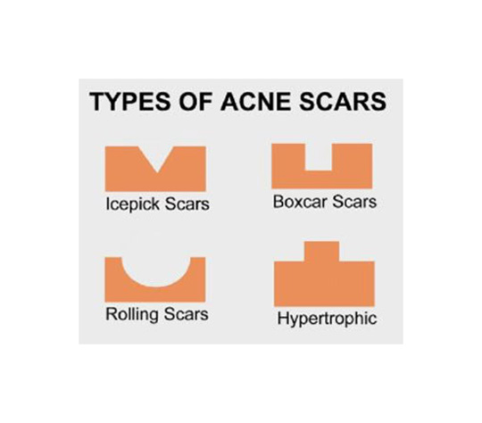 Sorry, guys. I'm not brave enough to post pics of my skin when it was at it's worst (maybe someday). For now, enjoy this infographic and try to identify which type of scar you have.