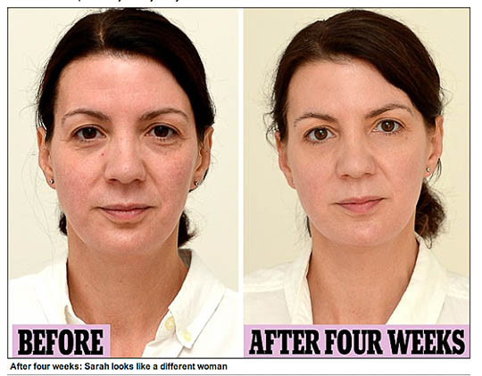 See what happened when this lady drank three liters of water a day for four weeks! Click on the pic to read her story.