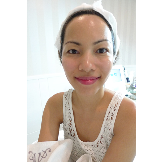 Here's what I looked like right after the facial. Aah, so fresh and my cheeks have a natural, rosy glow!  They slather on a bunch of anti-aging creams after, so you'll look very glossy. Now is it worth the pain? Read on for my final verdict!